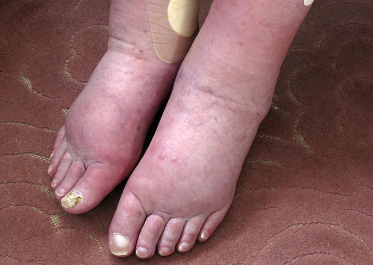 Causas y Sintomas de una Mala Circulación